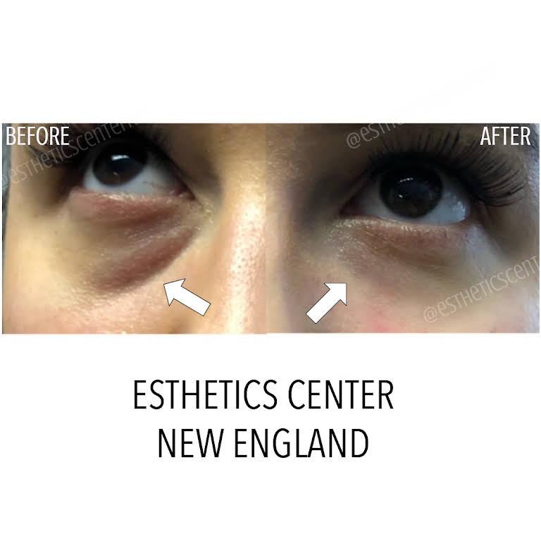 Esthetics Center New England - Skin Care Clinic in Wellesley