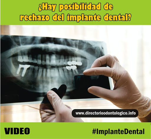 rechazo-implante-dental