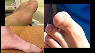 تورم أو انحناء إصبع القدم الكبير... اهم الأسباب وطرق العلاج