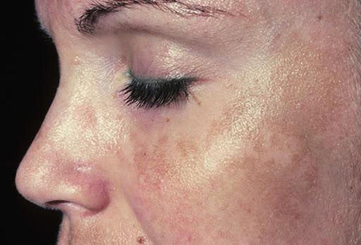 Kulit wajah kusam, kulit kusam, Images for kulit wajah kusam, cara atasi kulit wajah kusam, Cara Terbaik Mencerahkan Kulit Wajah Kusam Dengan Cepat 7 PENYEBAB KULIT WAJAH KUSAM Penyebab Kulit Wajah Kusam Dan Cara Mengatasinya 4 Cara Merawat Kulit Wajah Kusam Secara Alami  Cara Mengatasi Wajah Kusam Dengan Bahan Alami 9 Cara Mencerahkan Wajah Kusam Secara Alami dan Cepat Testimoni, Testimoni Vivix, Vivix shaklee, Pengedar Shaklee Johor, Pengedar Vivix Johor, Pengedar Vivix Shaklee, vivix shaklee reviews shaklee vivix side effects vivix shaklee harga 2016 vivix shaklee price vivix shaklee testimonials vivix shaklee cancer vivix shaklee ingredients shaklee vivix malaysia shaklee vivix side effects vivix shaklee cara makan vivix untuk sakit buah pinggang ubat buah pinggang paling mujarab makanan untuk pesakit buah pinggang cara mencegah sakit buah pinggang buah pinggang rosak penawar sakit pinggang daun sup cuci buah pinggang tanda sakit buah pinggang tahap 4 ubat sakit pinggang yang mujarab does shaklee vivix work vivix shaklee cara makan shaklee vivix cancer shaklee vivix ingredients shaklee vivix benefits shaklee vivix review shaklee vivix price shaklee vivix testimonials Images for shaklee vivix cancer shaklee cancer testimonials shaklee cancer treatment nutriferon and cancer nutriferon negative side effects shaklee nutriferon side effects does shaklee vivix work shaklee vivix side effects shaklee vivix testimonials