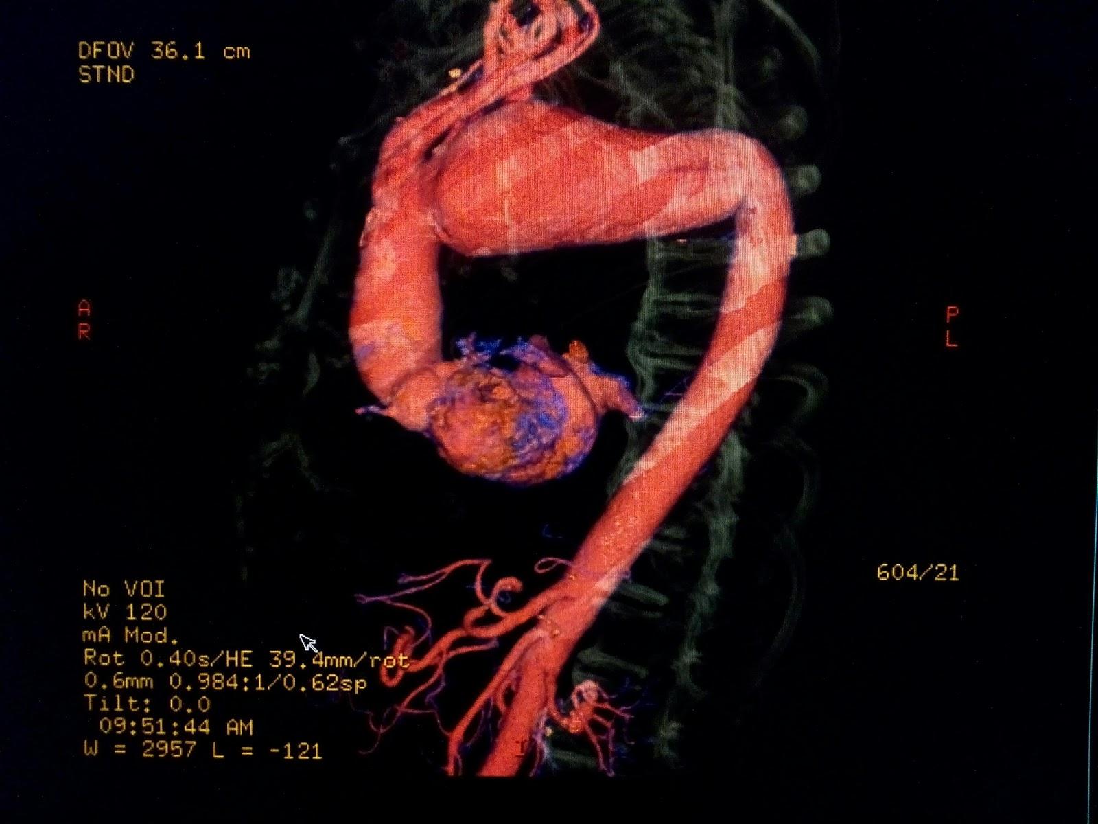 Aneurisma Arco Aortico. AngioCT   Radiodiagnóstico