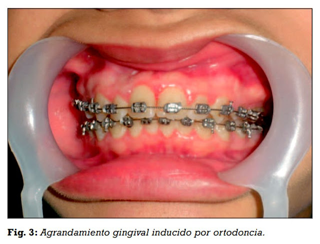 ortodoncia-agrandamiento-gingival