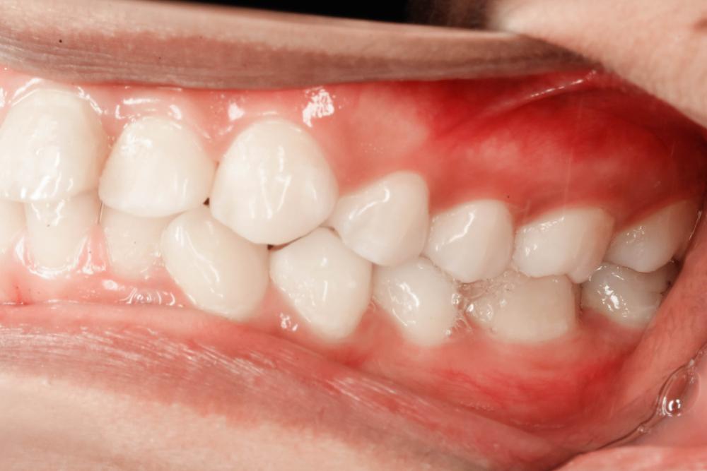Sorriso gengival - botox - Estética dental: 5 procedimentos que você deveria conhecer