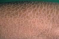 La Cure, Ichthyosis vulgaris. www.brendasjordan.com