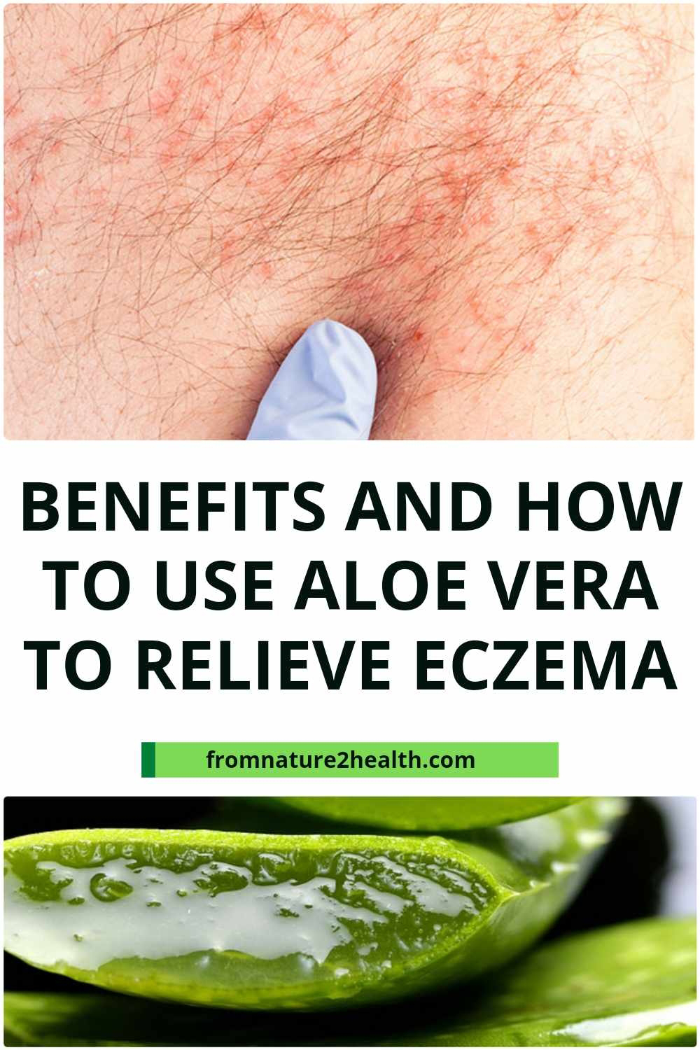 Benefits and How to Use Aloe Vera to Relieve Eczema