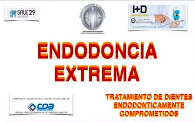 endodoncia-extrema