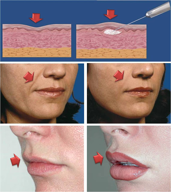 nasolabial fold and lip injection