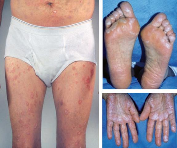 Acute Graft-Versus-Host Disease