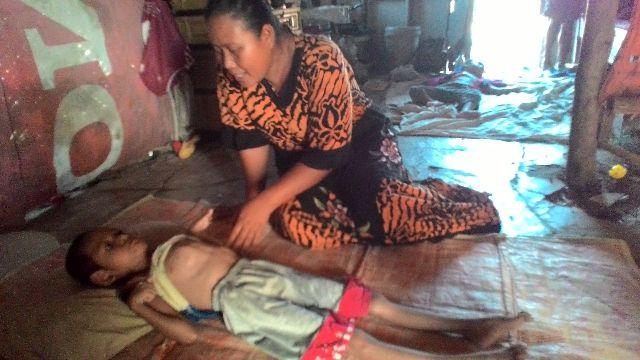 Bocah 6 tahun warga muara gembong menderita Gizi buruk