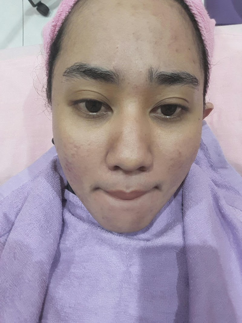 Facial Acne di Kusuma Beauty Lab Makassar