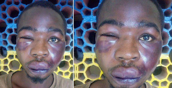 Man Calls Another Man 'Mad' Few Minutes Later See what happened to his Face