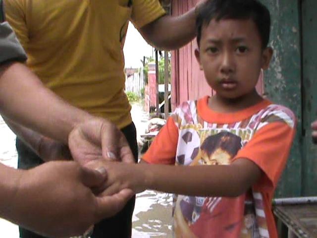 Warga Korban Banjir Mulai Terserang Gatal-Gatal
