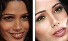 Side Effects Of Skin Bleaching