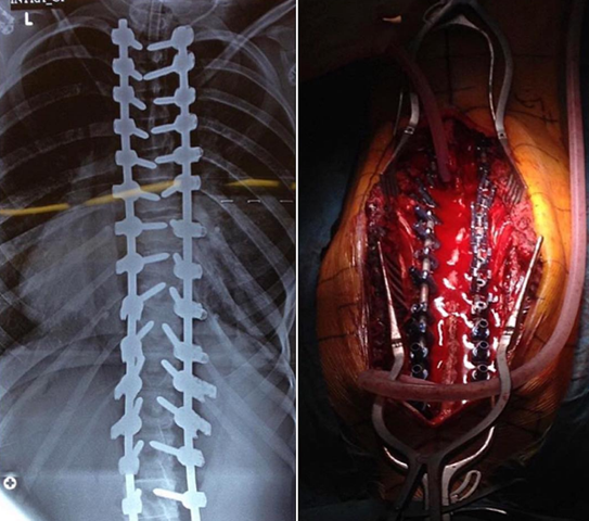 Intraoperative (right) and postoperative (left) views of the previous scoliosis case