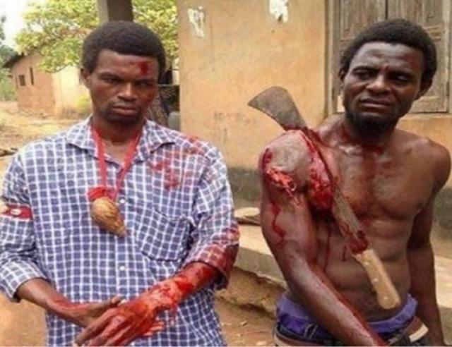 Fulani Herdsmen attack Ekiti Again