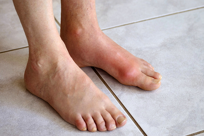 Gout Home Remedies You Need To Know