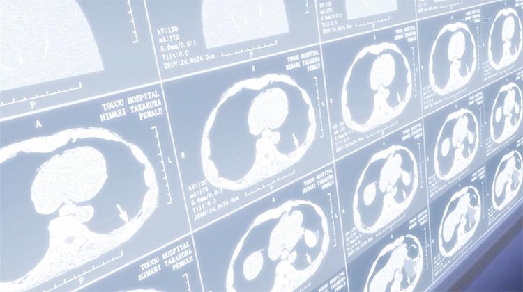 Mawaru Penguindrum Himari brain scan