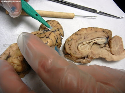 Sheep Brain Dissection With Labeled Images