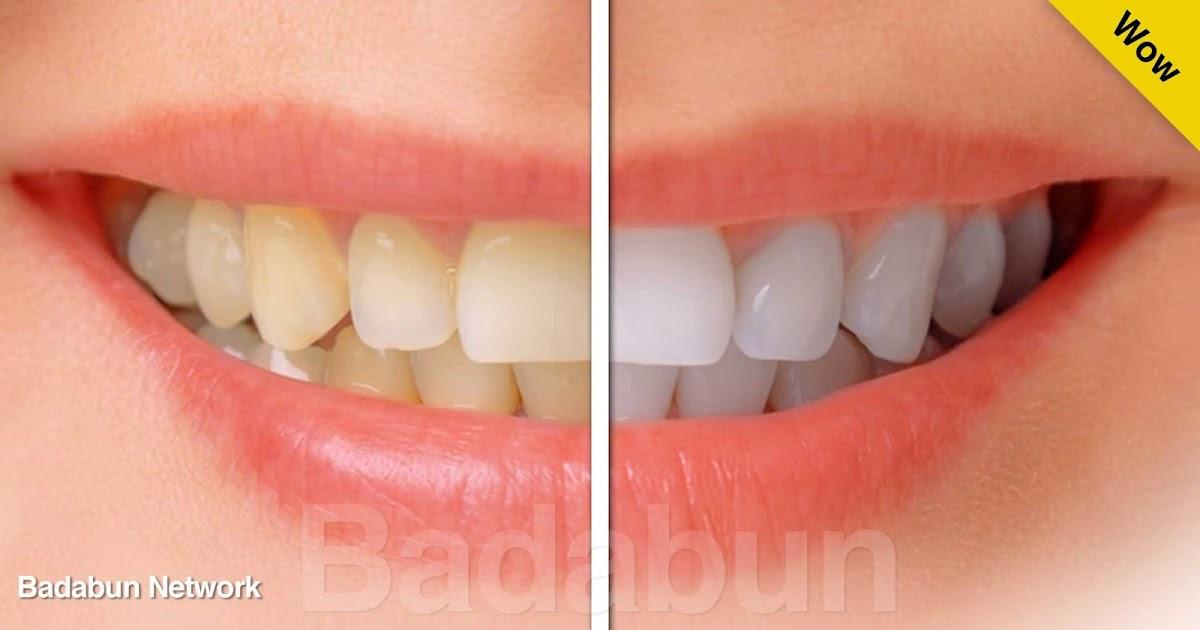 blanquear dientes platano cepillarse remedio casero