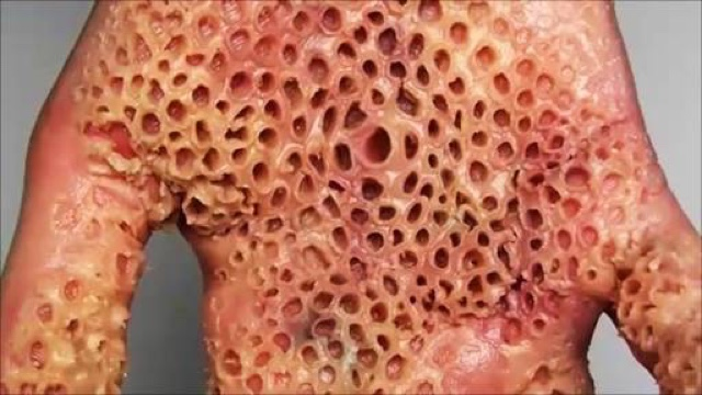 Nurses Notes Trypophobia Fear Of Holes