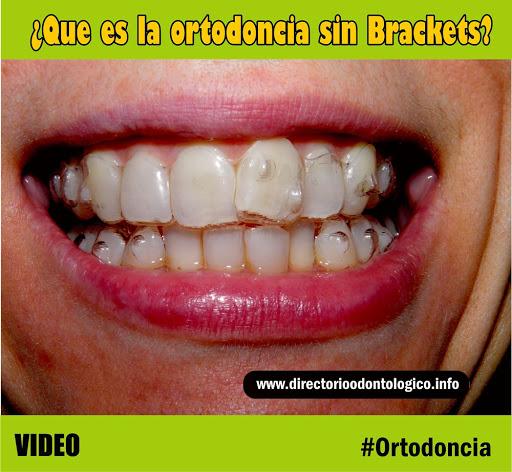 Ortodoncia que es la ortodoncia sin brackets directorio odontol gico - Como alinear los dientes en casa sin brackets ...