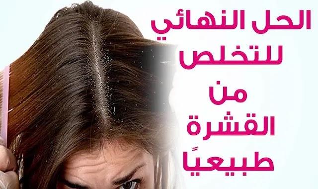 كيفية إزالة قشرة الشعر نهائيا