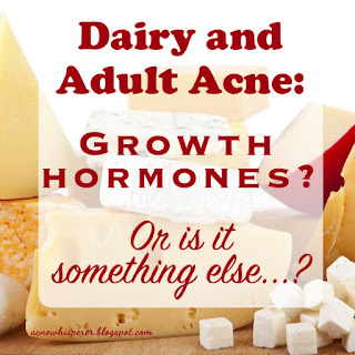Do you break out from dairy with Adult Acne?  Are you sure...?  Find out more!