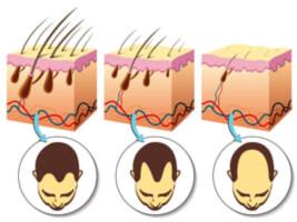 traitement contre la calvitie et la perte des cheveux