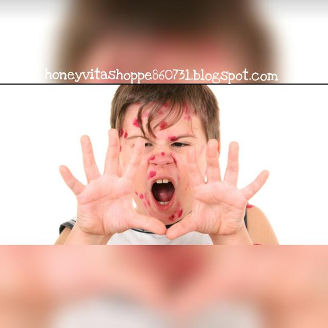 Parut Degil Chicken Pox Hilang Dengan Supplement Shaklee