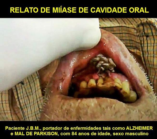 miíase-oral