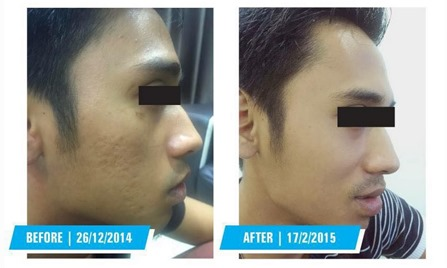 testimonial azanis scar serum