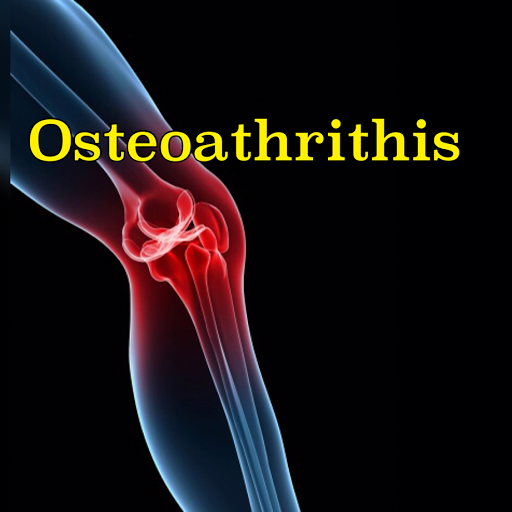 Osteoathrithis