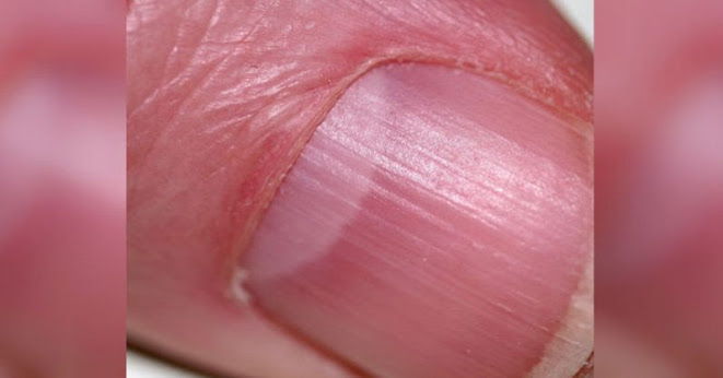 Your Lunula and Fingernails and What they Say About Your Health