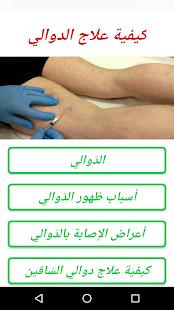 كيفية علاج الدوالي - náhled