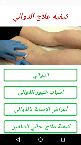 كيفية علاج الدوالي  Screenshot