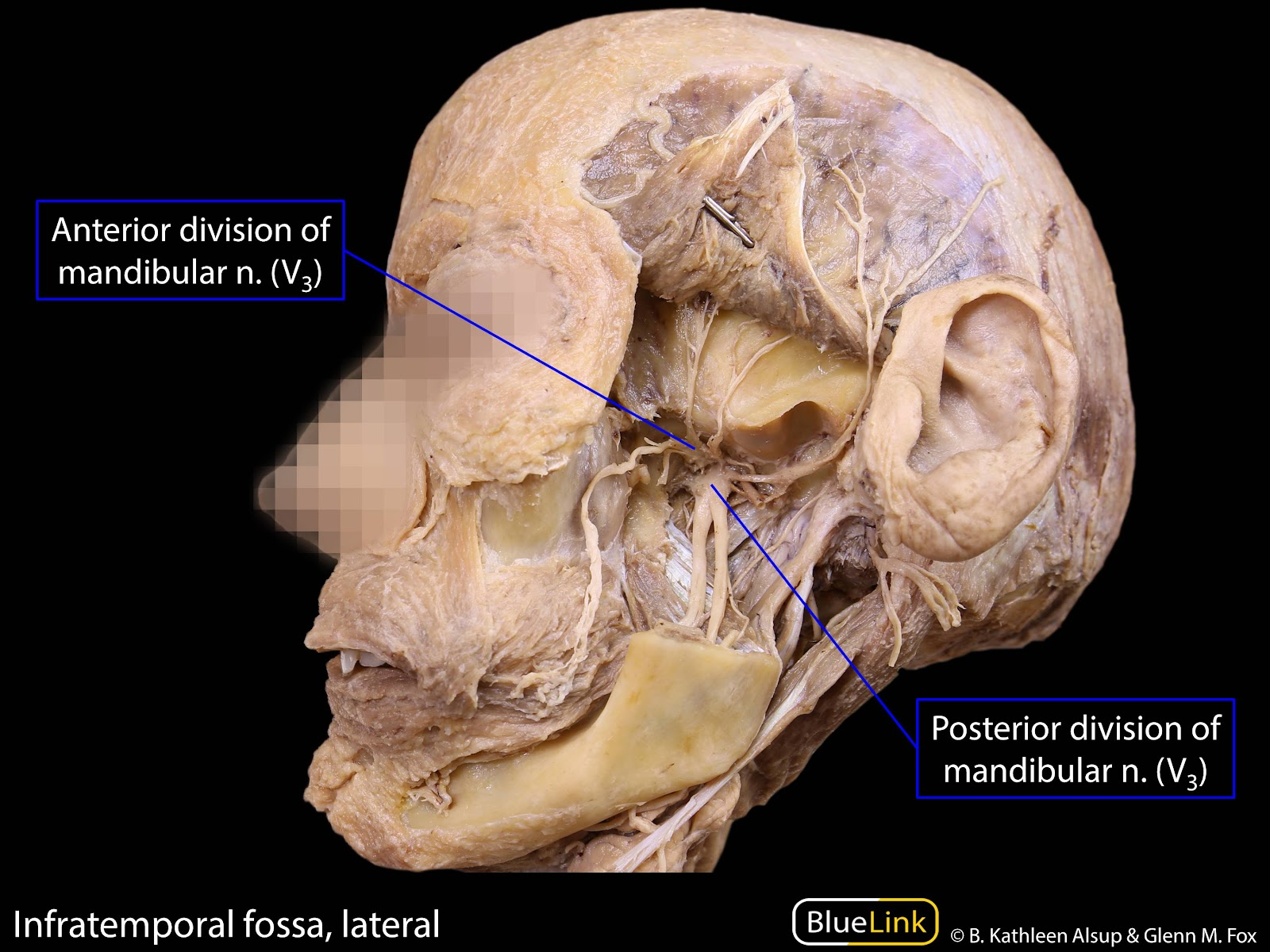 S9 Infratemporal Fossa Learning Objectives