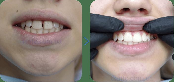 Почему на самом деле стоит установить виниры на зубы?