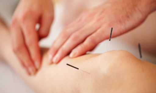 Download Acupuncture and benefits. Acupuncture techniques 2.0.0 2