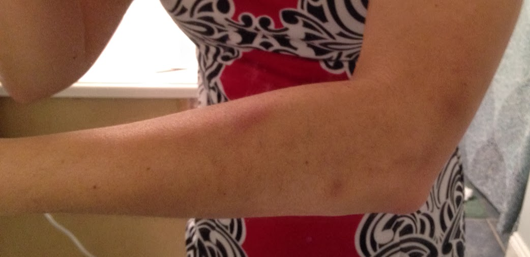 Forearm bruises from Graston for tennis elbow