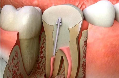 Điều trị tủy răng sữa sớm cho trẻ trước khi quá muộn 1
