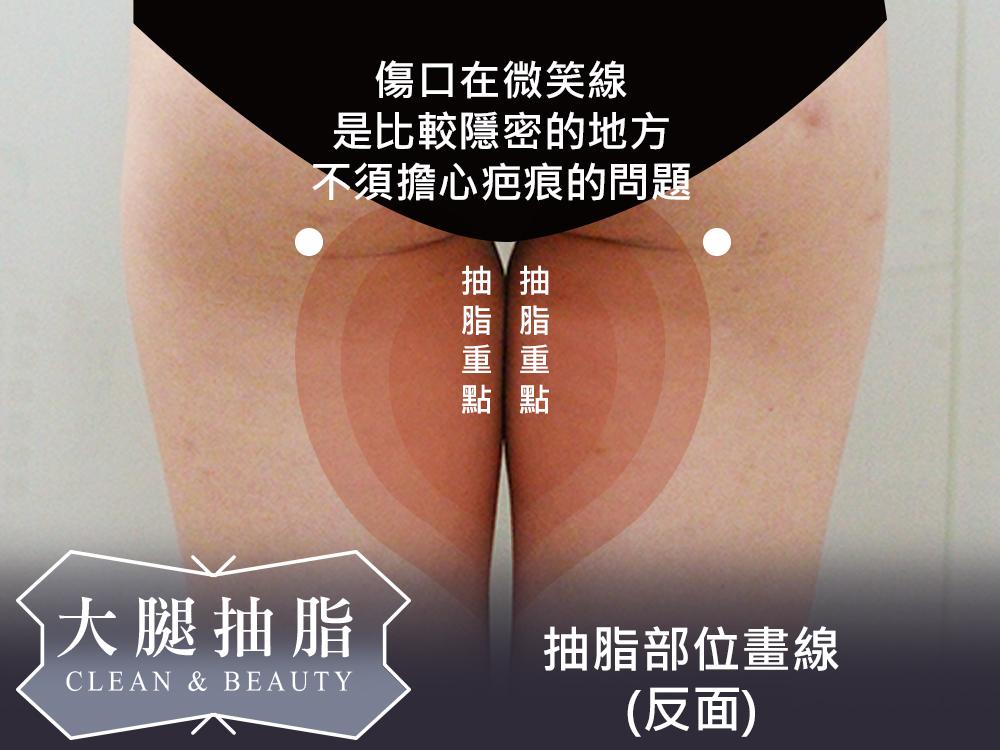 傷口插畫1.jpg