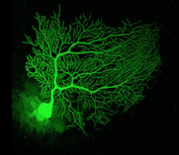 Photo: Image: A rat Purkinje neuron injected with a fluorescent dye. Purkinje neurons are the major output neurons of the cerebellum. enlarge image  © 2010 Testuya Tatsukawa  Source: http://www.rikenresearch.riken.jp/eng/hom/6236