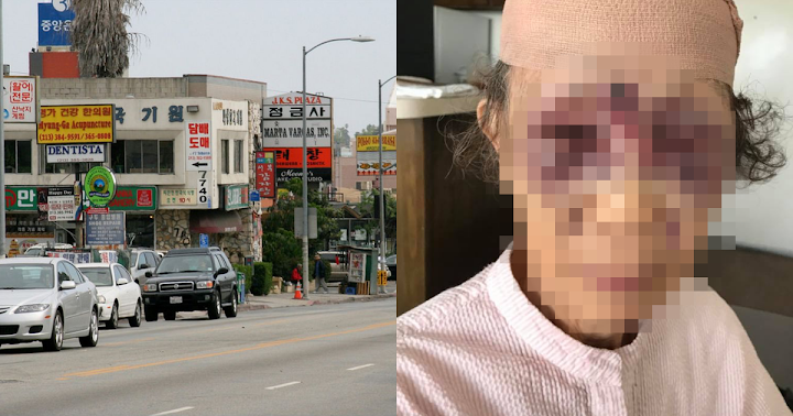 Korean Grandma Brutally Beaten In Koreatown L A  For Absolutely No