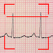 ECG Reader - Androidアプリ
