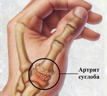 артрит суглобу