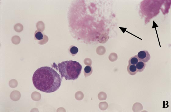 Large amorphous pink staining aggregates (arrows) are disintegrated nuclei (100x).