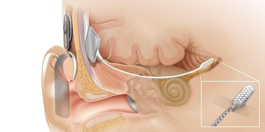 ABI - Implante de Tronco Cerebral – Desculpe, Não Ouvi!