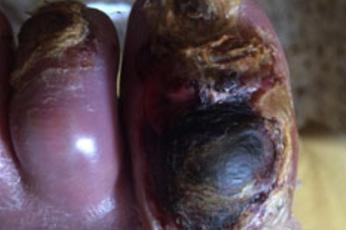 Ulceras vasculares: arteriales
