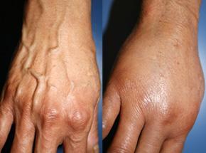 muestra antes y después de oprecaión de venas en las manos
