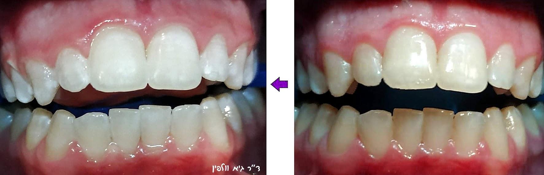 הלבנת שיניים תוך שעה, ד''ר גיא וולפין, אסתטיקה דנטלית ושיקום הפה